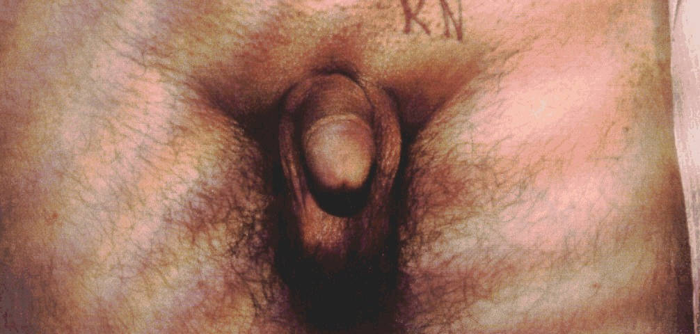 Best Affordable Cost Penile Implant Surgery Treatment in